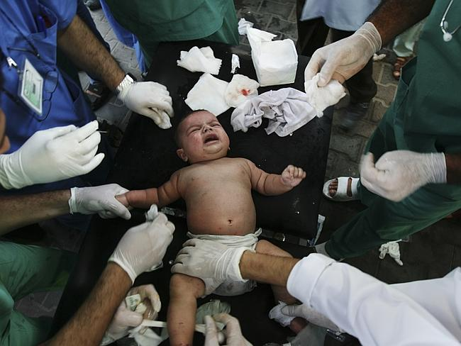 Medics treat baby wounded in a missile strike