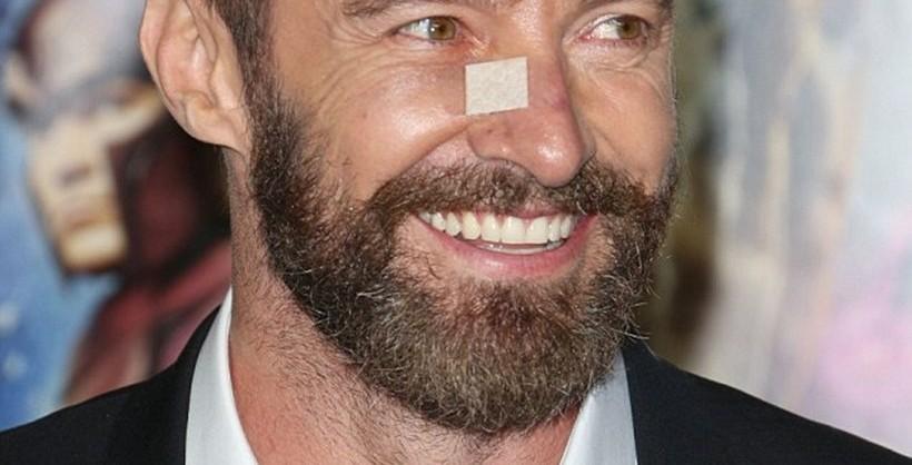 Αποτέλεσμα εικόνας για hugh jackman skin cancer