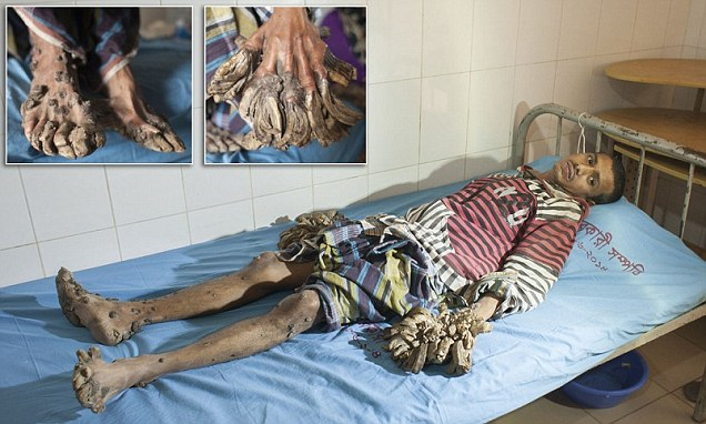 A Man Turning Into Tree Admitted To The Hospital Pics