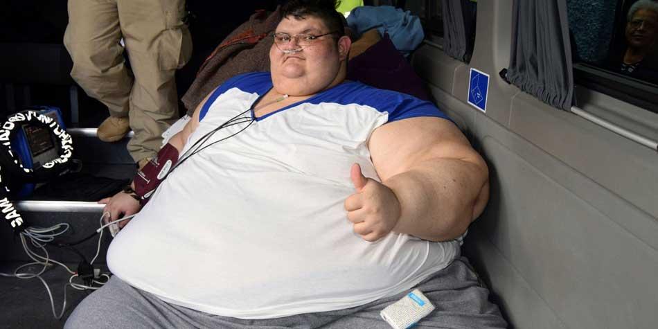 Worlds heaviest man has surgery to halve weight (photo