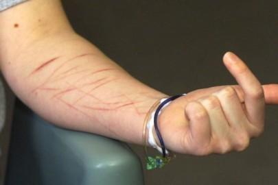 scars-759x419